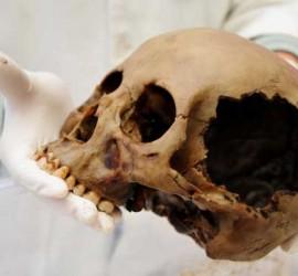 Fotografía de un científico que sujeta un cráneo en relación con los investigadores granadinos que han diseñado el nuevo método para identificar el sexo de los cadáveres
