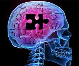 Una radiografía de una cabeza humana que muestra el cerebro que simula un puzzle en el que falta una pieza. La imagen está referida a la nueva app que ha creado Grupo Trvenque para evaluar la pérdida de memoria